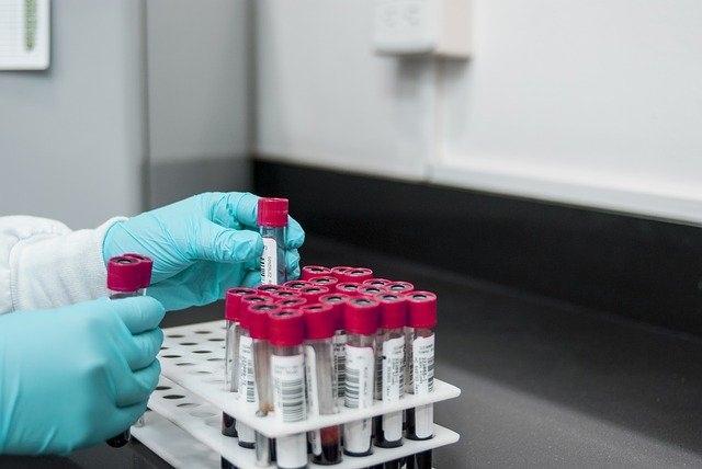 transport-dechantillon-biologique-un3373-marseille